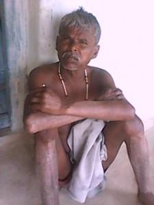 चरम रोग  पीड़ित सुमेरा